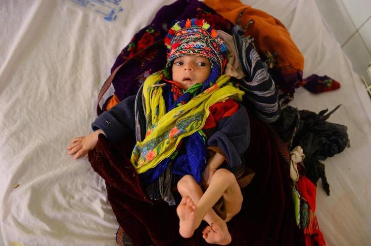 Photo: Omid, ten months malnourished child suffering from pneumonia is treated in Mofleh Pediatric Hospital in the province of Herat province, west of Afghanistan on January 29, 2019. © UNICEF/UN0280720/Hashimi AFP-Services